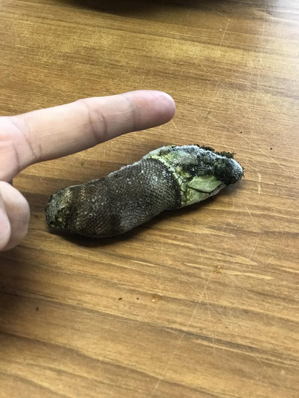 埋まっ 指 てる トゲ